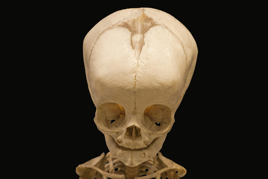 Skull Of 4 Month Old Baby Photograph By Science Stock Photography