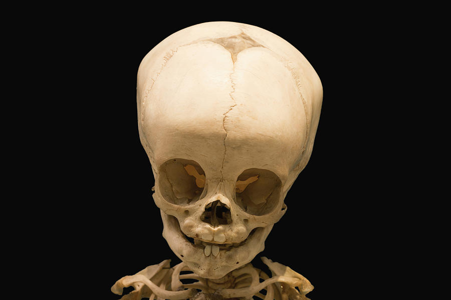 Skull Of Baby At 12 Months Photograph by Science Stock Photography