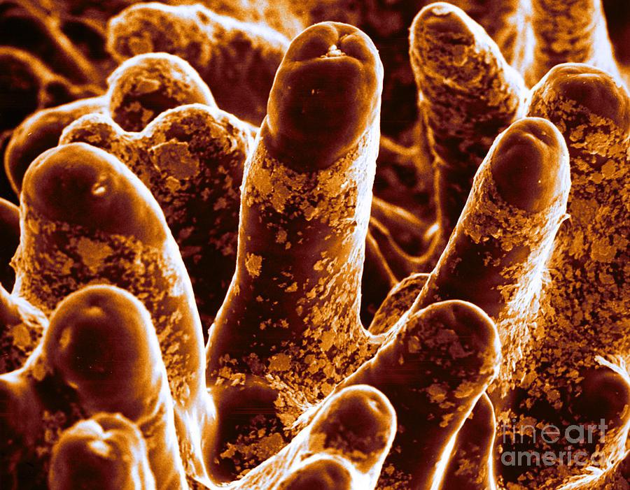 Small Intestine Villi Sem Photograph By David M Phillips
