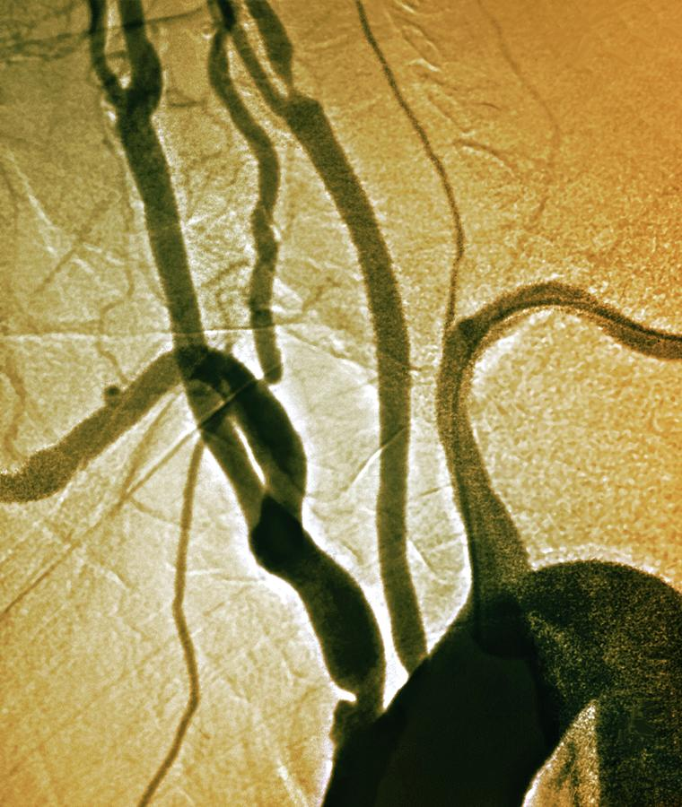 Colour Photograph - Stenosis Of Arteries by Zephyr/science Photo Library