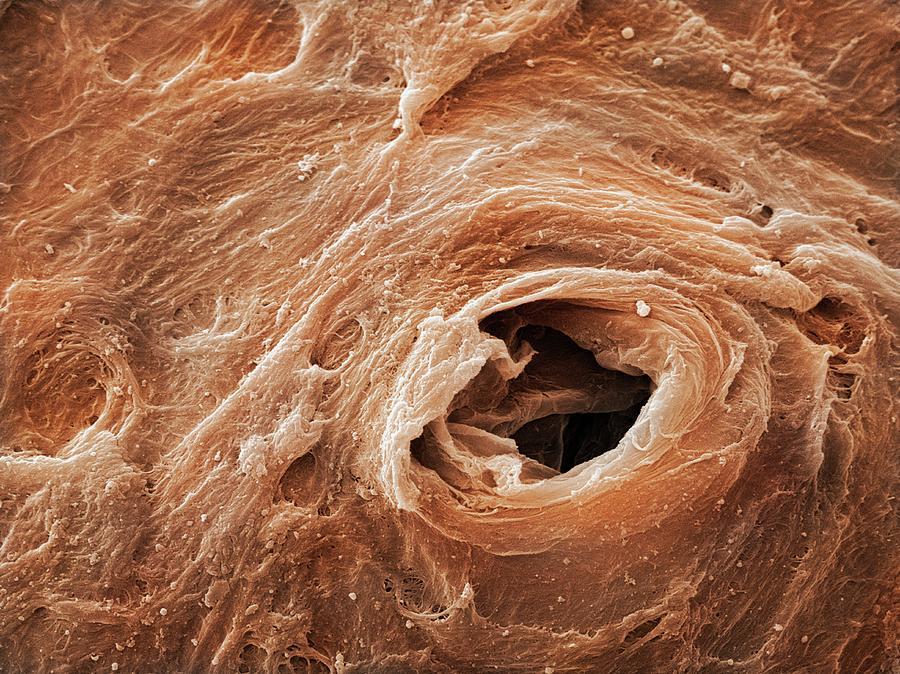 кожа лица под микроскопом фото сказать