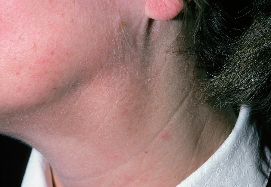 Swollen Glands Lymphadenopathy In Womans Neck Photograph By