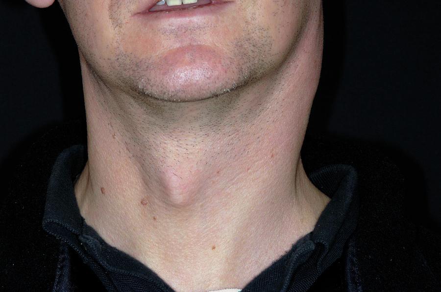 Swollen Lymph Nodes In Tonsillitis Photograph By Dr P Marazzi