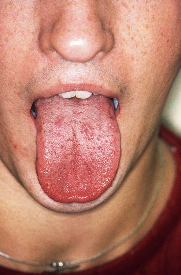 Syphilis In The Mouth Photograph by Cdc/science Photo Library