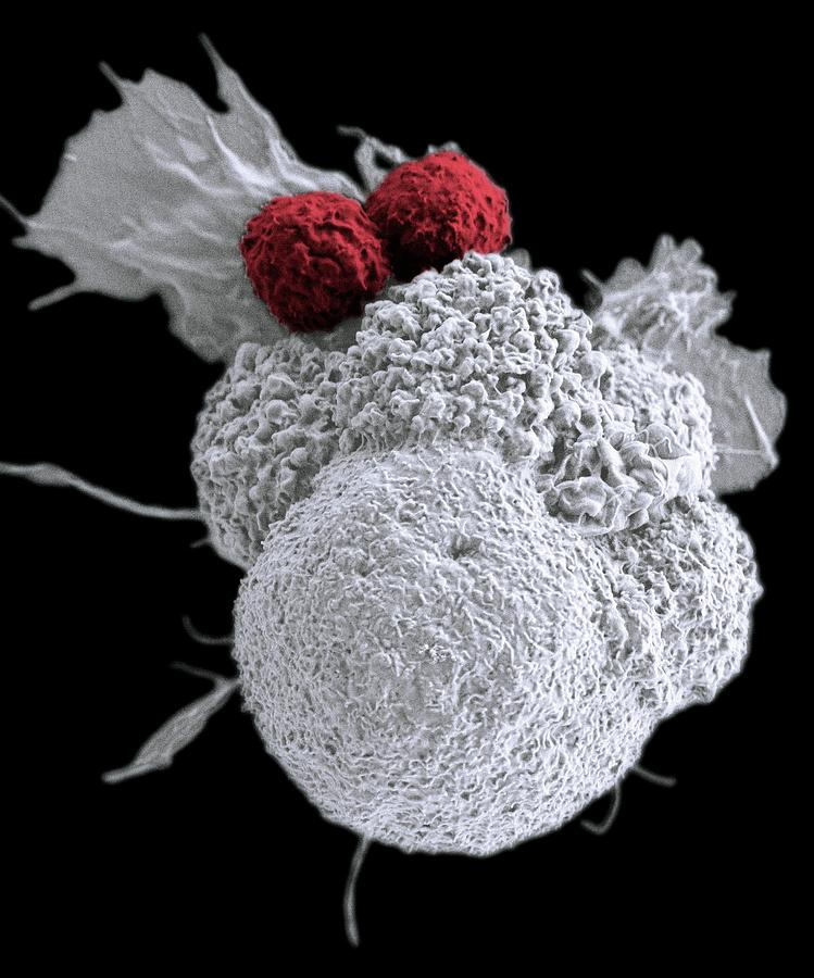 Cell Photograph - T Cells Attacking Cancer Cell by Duncan Comprehensive Cancer Center At Baylor College Of Medicine/national Cancer Institute/science Photo Library