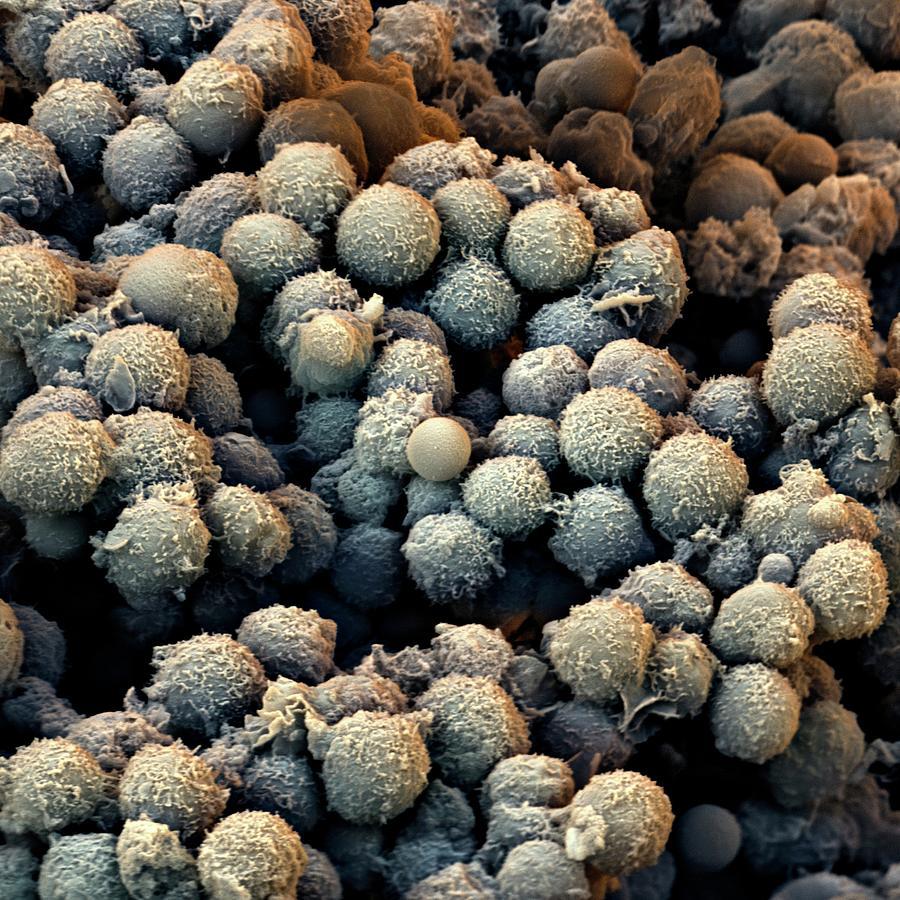 T Lymphocyte Photograph - T-lymphocyte White Blood Cells by Stefan Diller