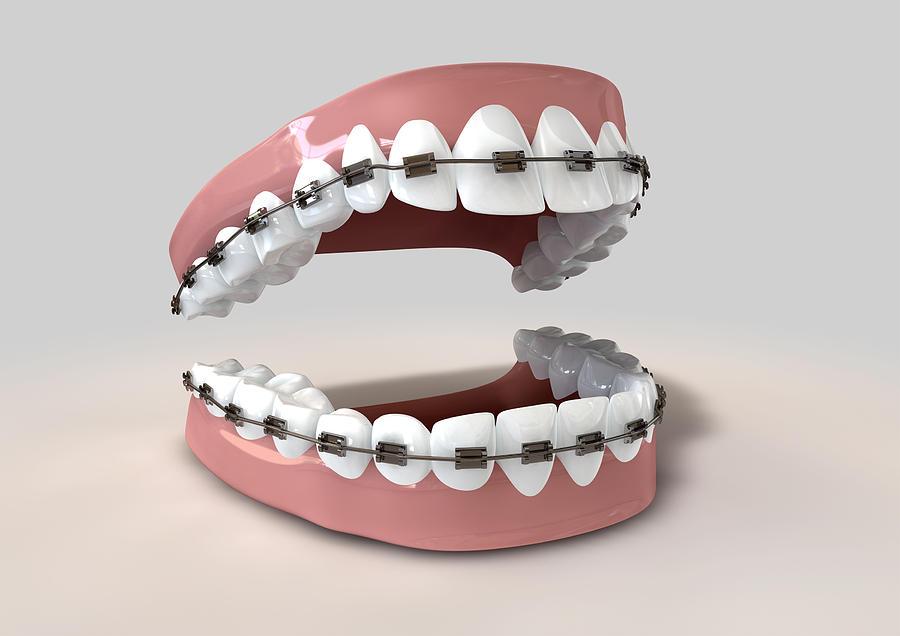 Teeth Digital Art - Teeth Fitted With Braces by Allan Swart