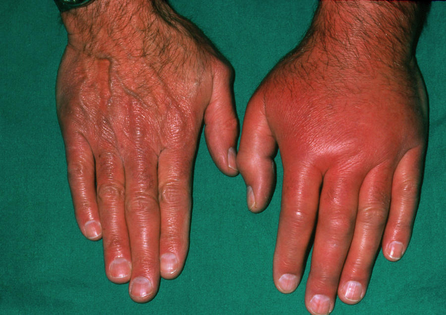Pictures of gout in hand and wrist