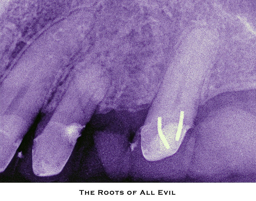 X-rays Photograph - The Roots Of All Evil by Lorenzo Laiken