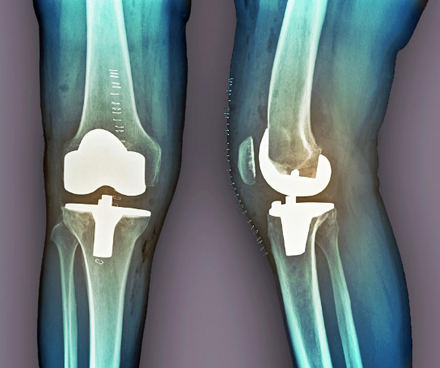 Total Knee Replacement, X-rays Photograph by Zephyr
