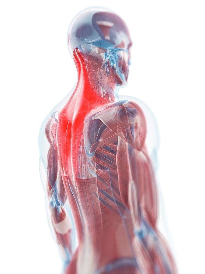 Trapezius Muscle Photograph By Scieproscience Photo Library