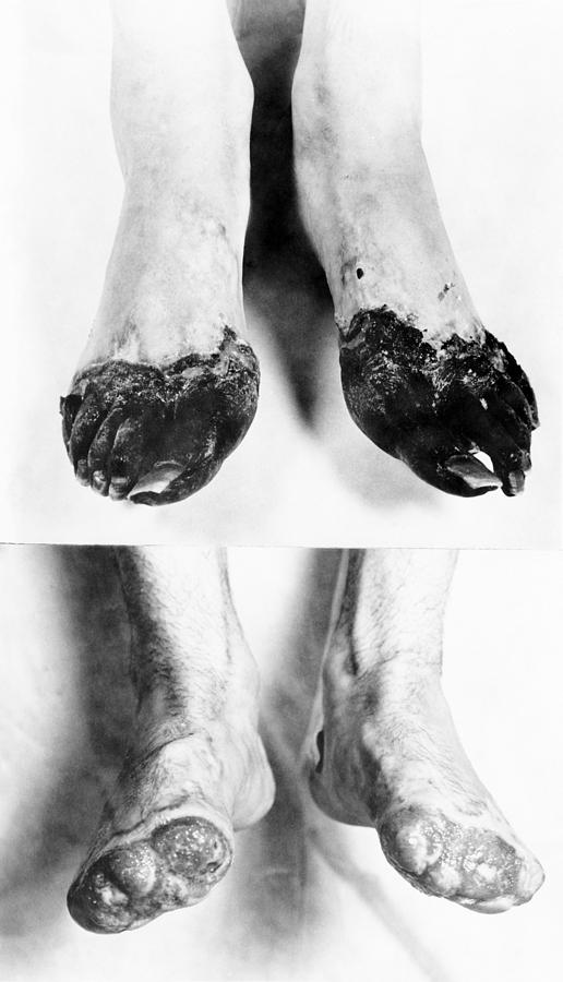 Trench Foot Photograph By Otis Historical Archives