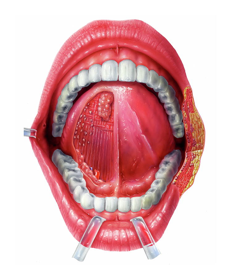 Lip Photograph - Underside Of The Tongue by Bo Veisland/science Photo Library