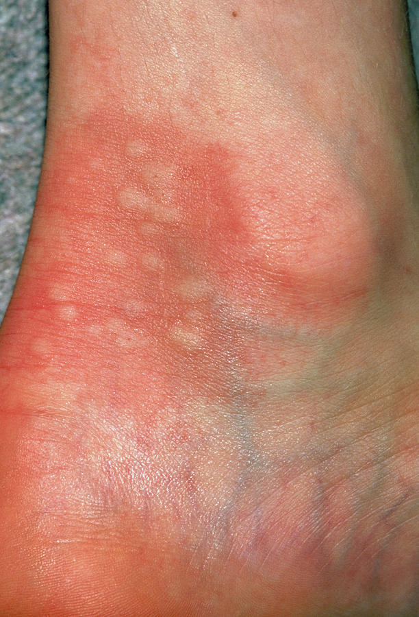Urticaria Rash (hives) On Ankle Due To Nettles