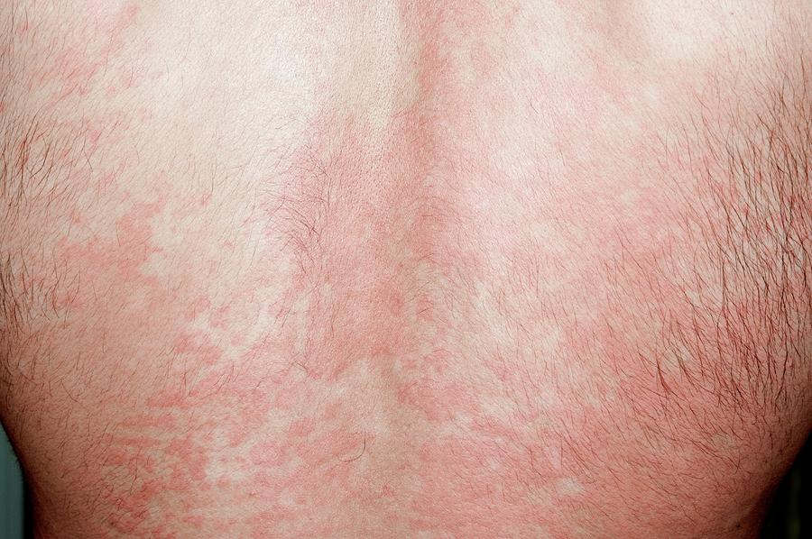 Urticaria Rash On The Back by Dr P  Marazzi/science Photo Library