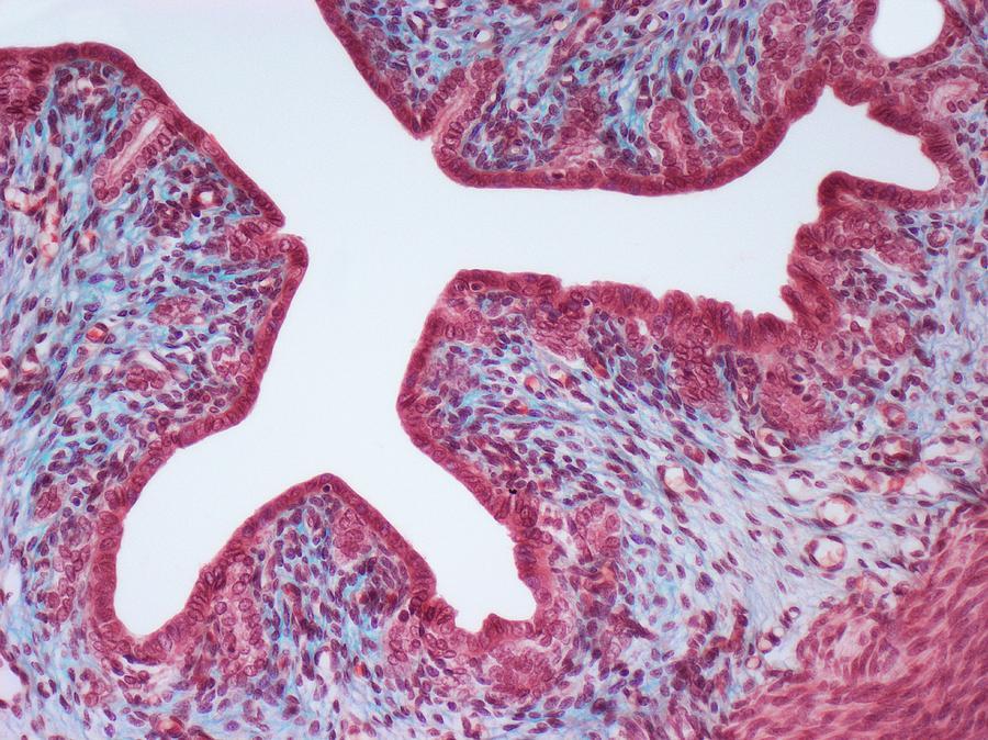uterine wall photograph by steve gschmeissner