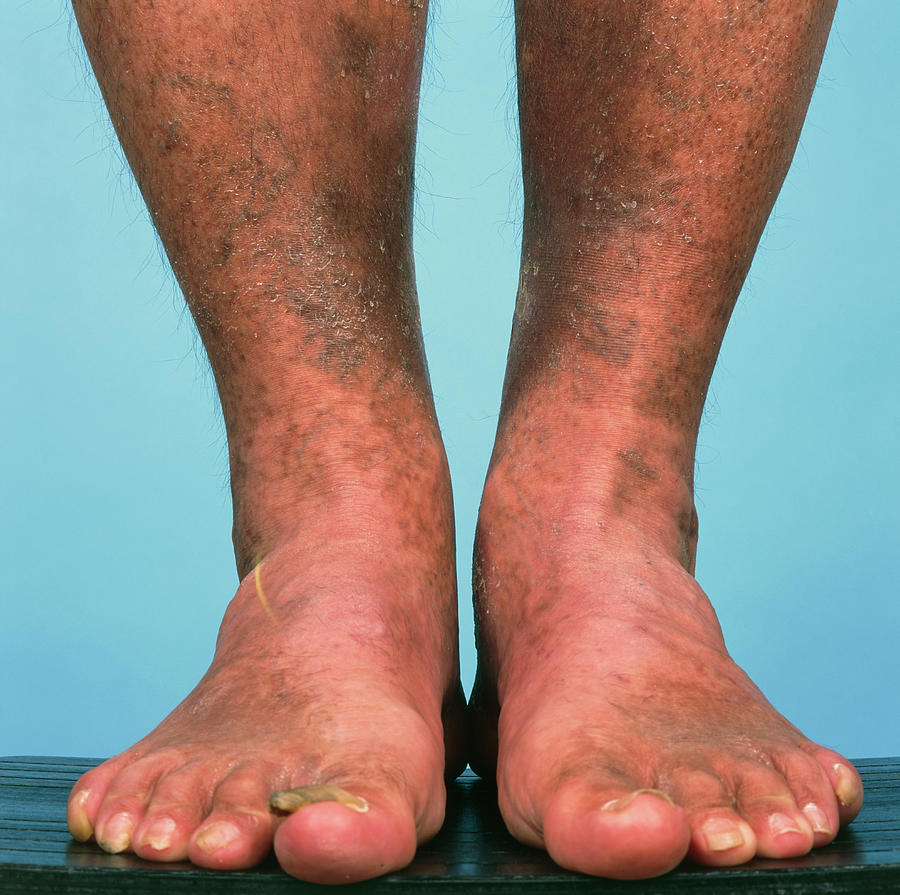 Varicose Veins Photograph - Varicose Vein Bruising by Alex Bartel/science Photo Library