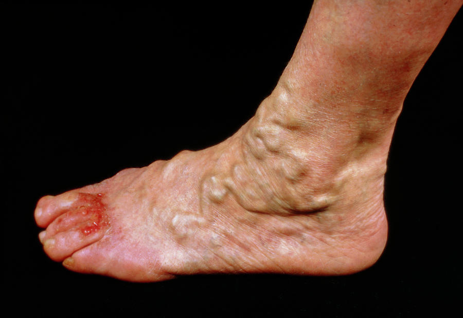 Varicose Veins On The Foot With Ulceration Of Toes Photograph By