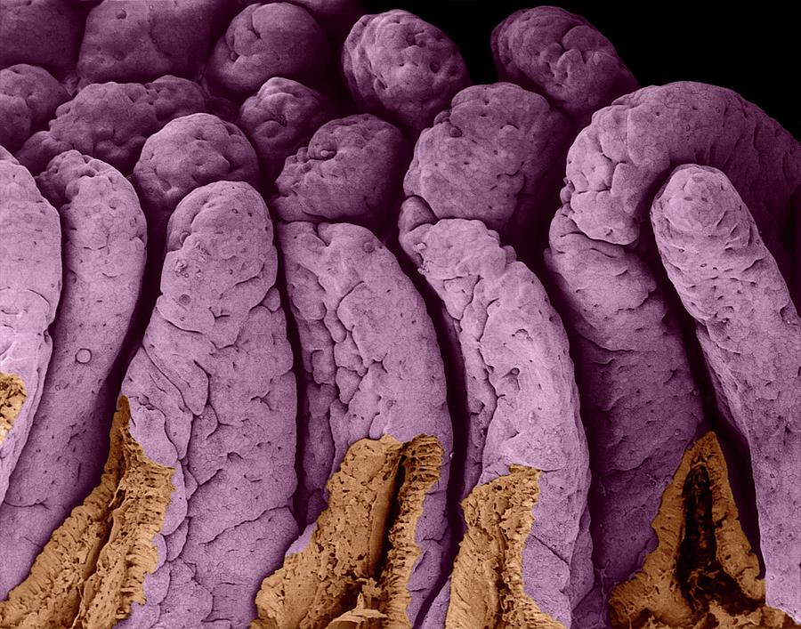Villi Of The Small Intestine Photograph By Dennis Kunkel Microscopy