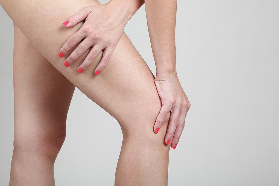 Ache Photograph - Woman Massages Her Painful Knee by Photostock-israel