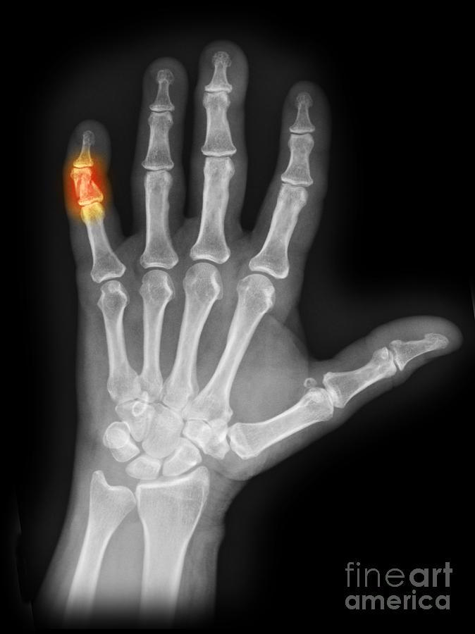 xray of crushed finger photograph by scott camazine