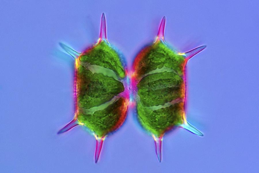 Algae Photograph - Xanthidium Desmids, Light Micrograph by Science Photo Library