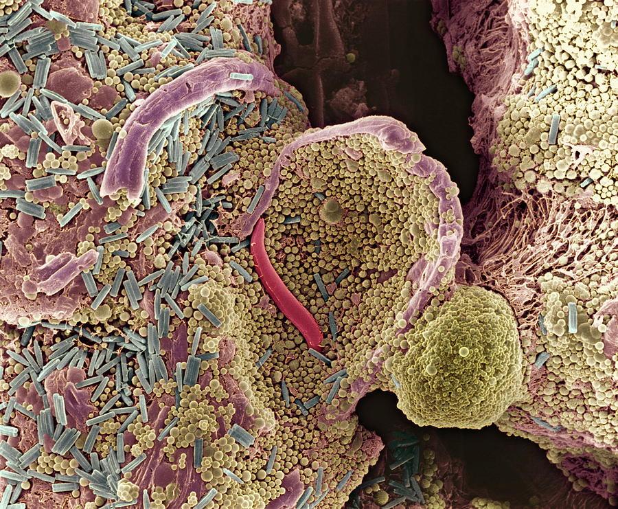 Diatom Photograph - Algae In Soil, Sem by Dr Jeremy Burgess