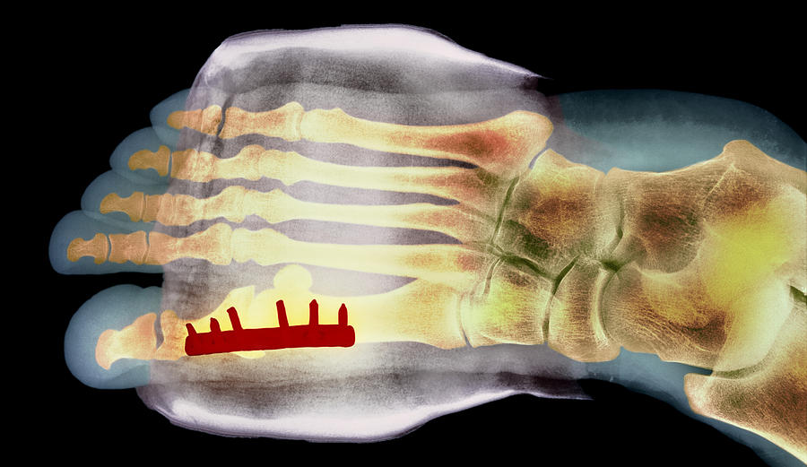 X-ray Photograph - Big Toe After Bunion Surgery, X-ray by
