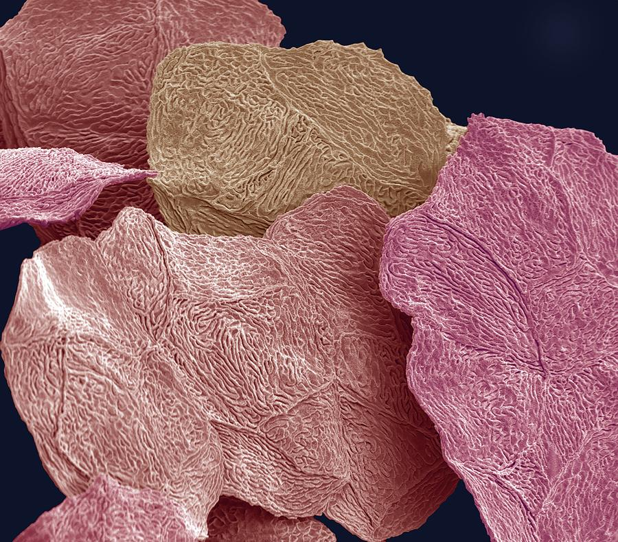 Cell Photograph - Bird Squamous Skin Cells, Sem by Steve Gschmeissner