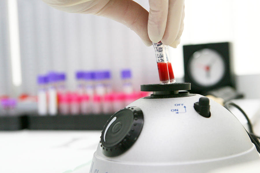 Homogeniser Photograph - Blood Sample Testing by Ria Novosti