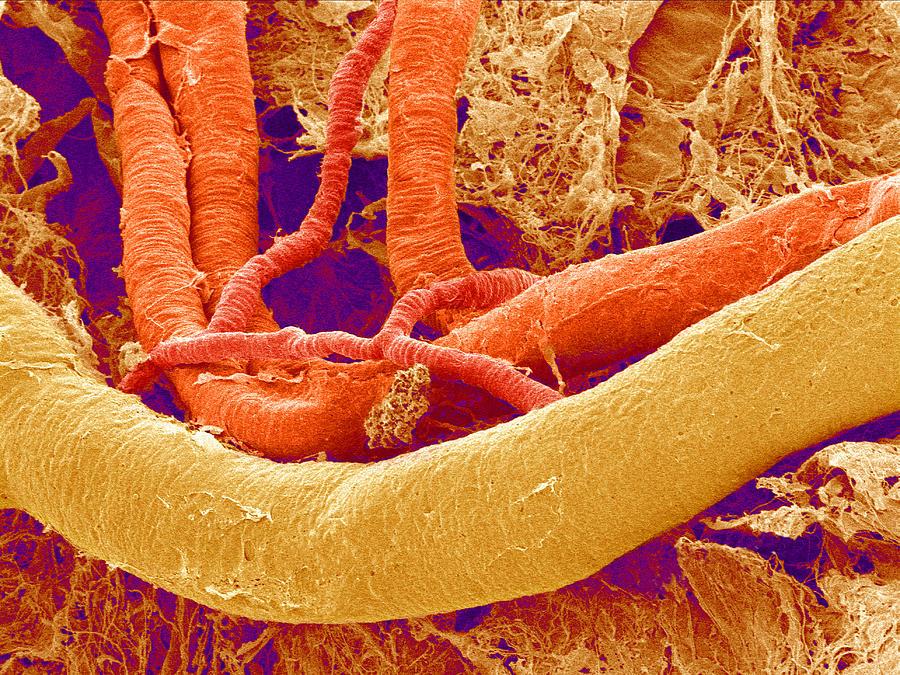 Artery Photograph - Brain Blood Vessels, Sem by Susumu Nishinaga