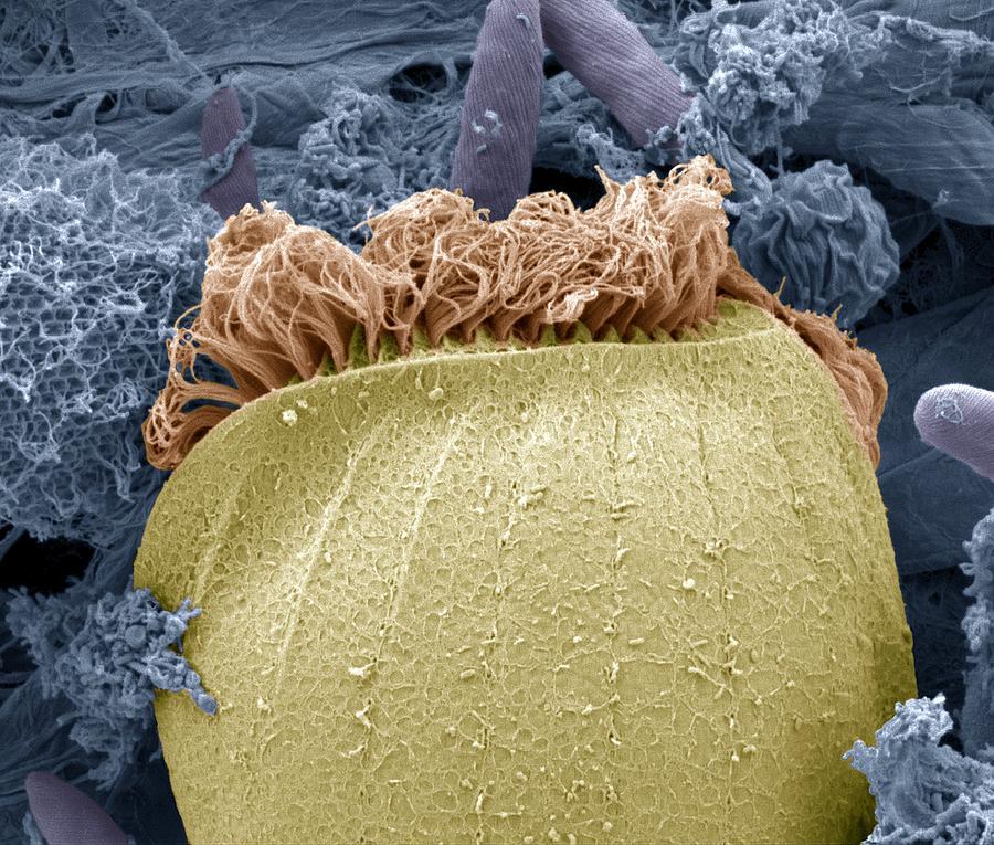 Protozoan Photograph - Ciliate Protozoan Membranelles, Sem by Steve Gschmeissner