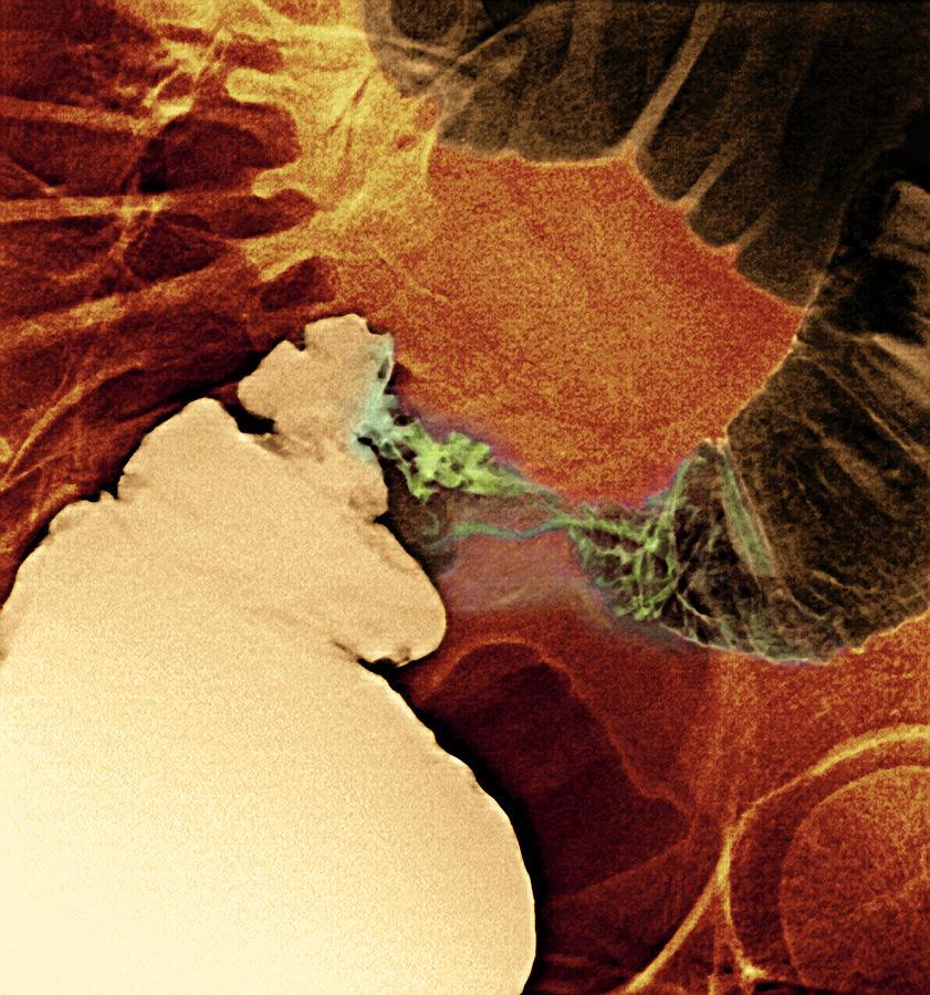 Medicine Photograph - Colon Cancer, X-ray by Du Cane Medical Imaging Ltd