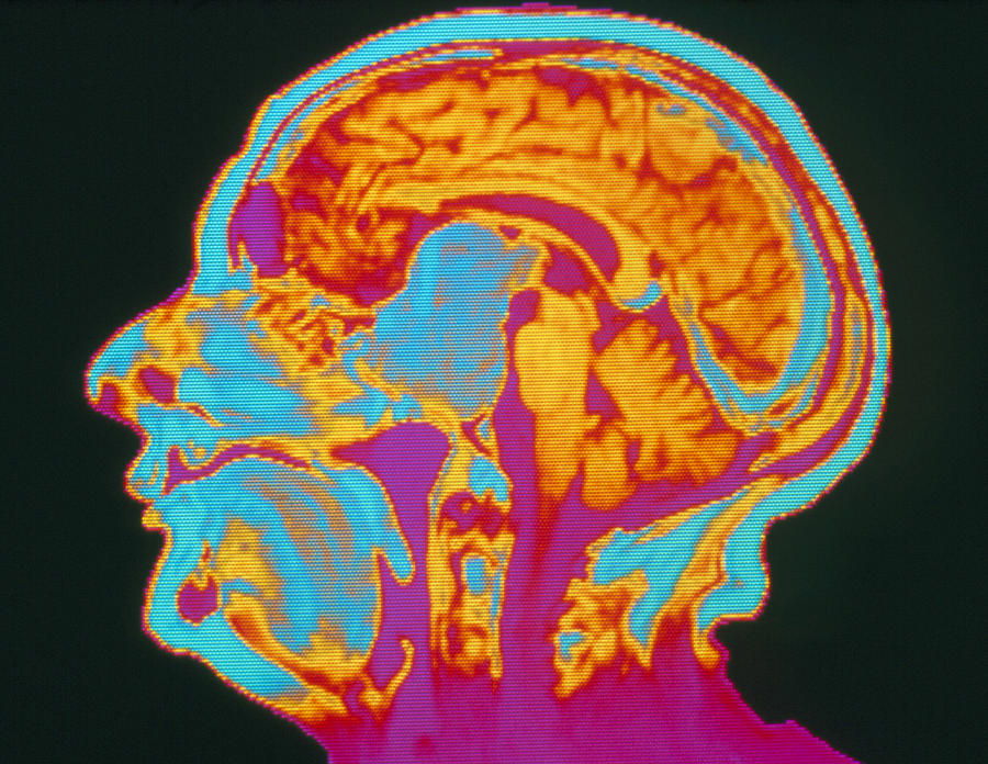 Tumour Photograph - Coloured Mri Brain Scan Of A Pituitary Tumour by Mehau Kulyk