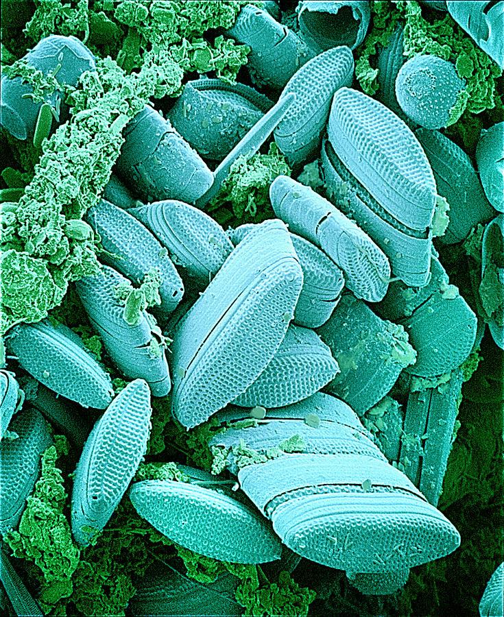 Diatom Photograph - Diatoms, Sem by Susumu Nishinaga