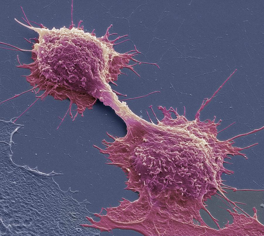 Cancer Cell Photograph - Dividing Cancer Cells, Sem by Steve Gschmeissner