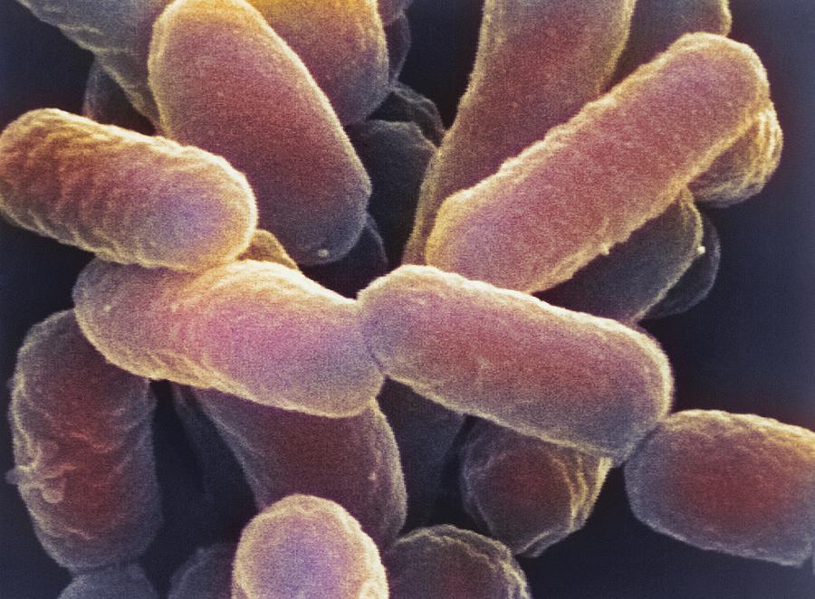 illnesses caused by e coli In fact, 75% to 95% of urinary tract infections are caused by e coli some versions of e coli make you sick by making a toxin called shiga this toxin damages the lining of your intestine.