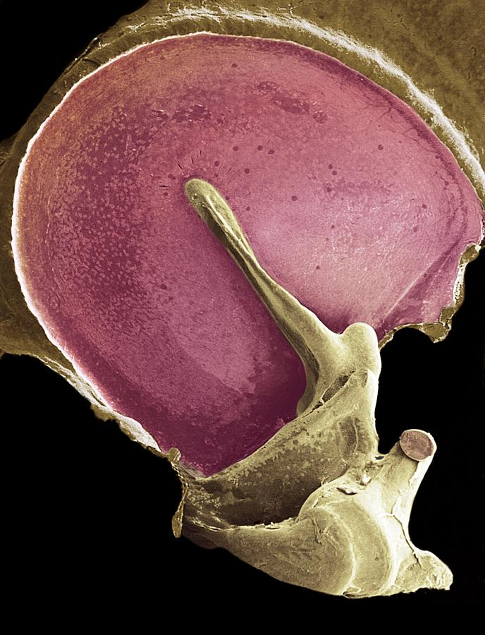 Tympanic Membrane Photograph - Eardrum, Sem by Steve Gschmeissner