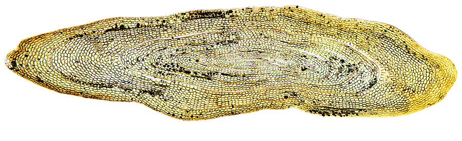 Anguilla Anguilla Photograph - Eel Scale, Light Micrograph by Dr Keith Wheeler