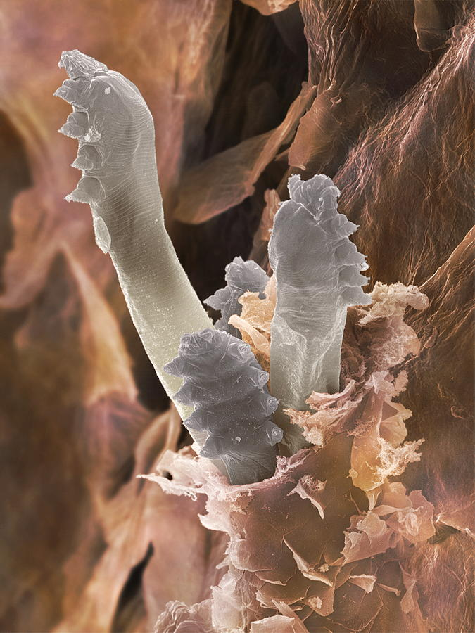 Eyelash Mite Sem Photograph By Power And Syred