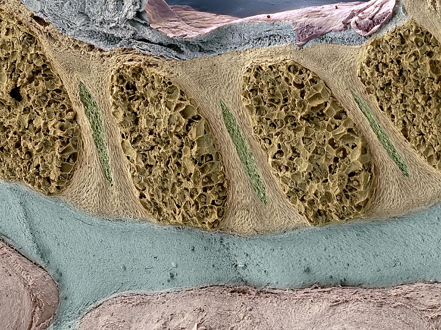 Disc Photograph - Foetal Spinal Column by Steve Gschmeissner