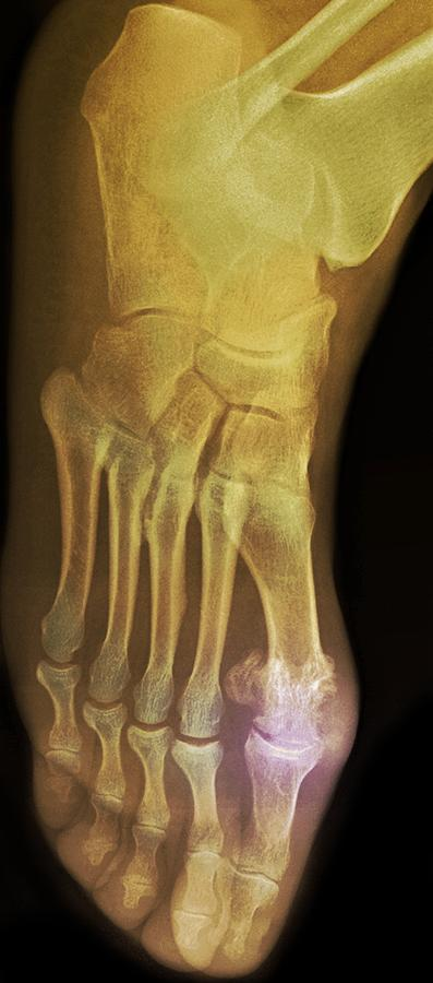 Colour Photograph - gouty Foot, X-ray by Du Cane Medical Imaging Ltd