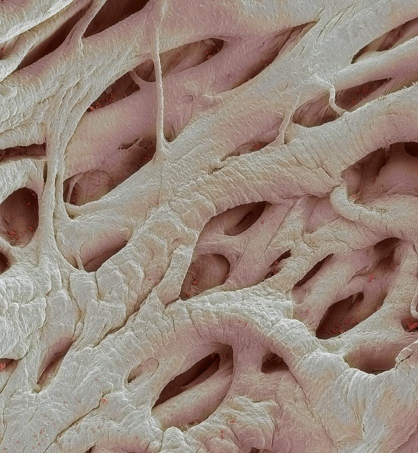 Electron Microscope Photograph - Heart Strings, Sem by Steve Gschmeissner