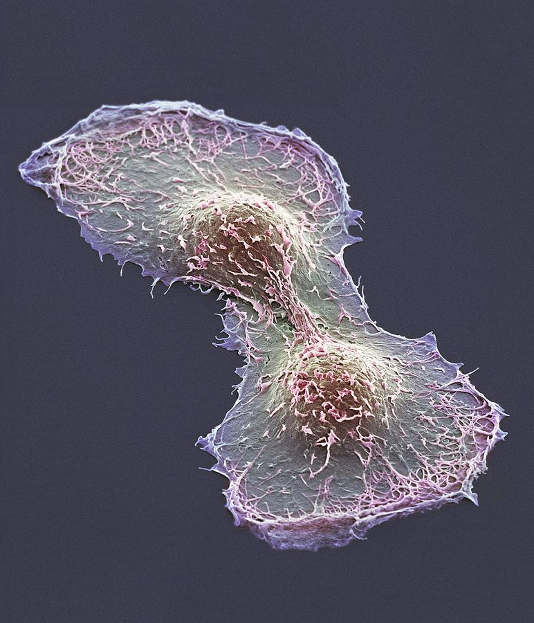 Hela Cell Photograph - Hela Cell Division, Sem by Thomas Deerinck, Ncmir