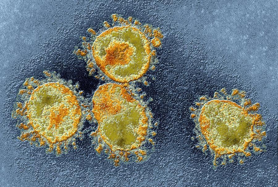Coronavirus Photograph - Human Coronavirus, Tem by Ami Images