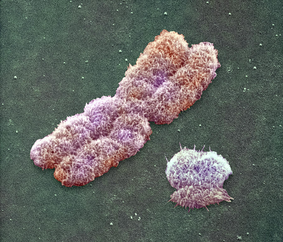Anatomy Photograph - Male Sex Chromosomes, Sem by Power And Syred