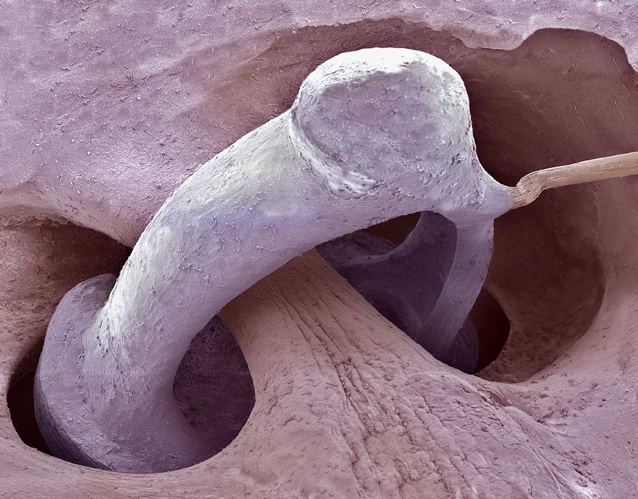 Middle Ear Bone Sem Photograph By Steve Gschmeissner