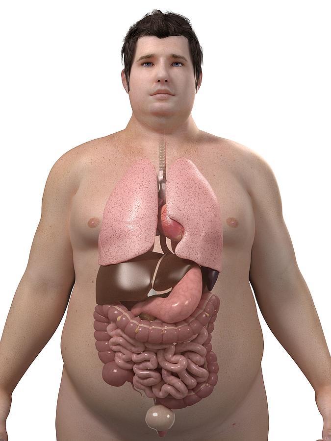 Artwork Photograph - Obese Mans Organs, Artwork by Sciepro