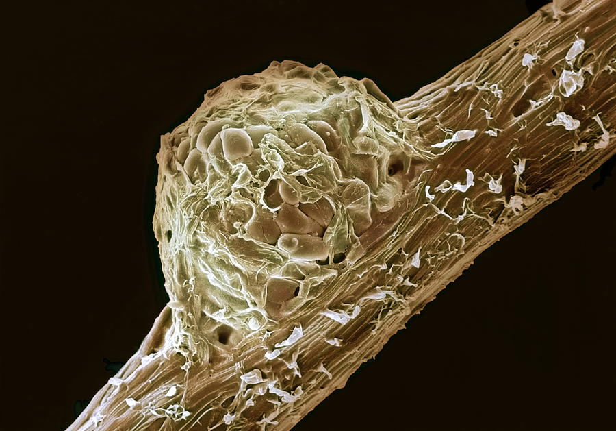 Pea Photograph - Root Nodule by Dr Jeremy Burgess