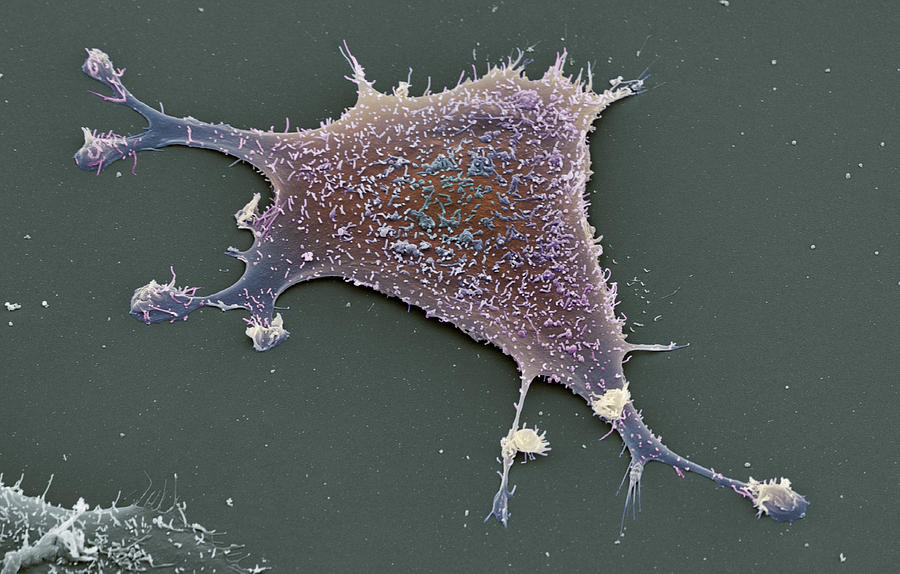 Sarcoma Cancer Cell Photograph by Steve Gschmeissner